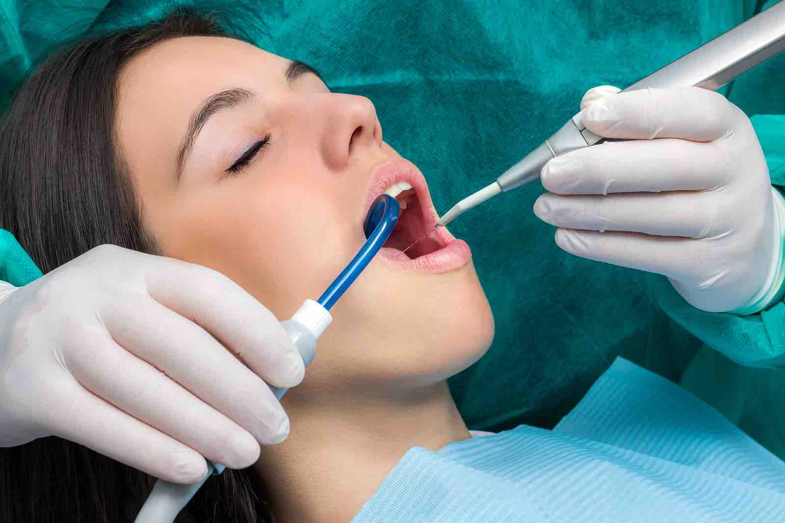 Dental cleaning in Bellaire dental office in Houston.