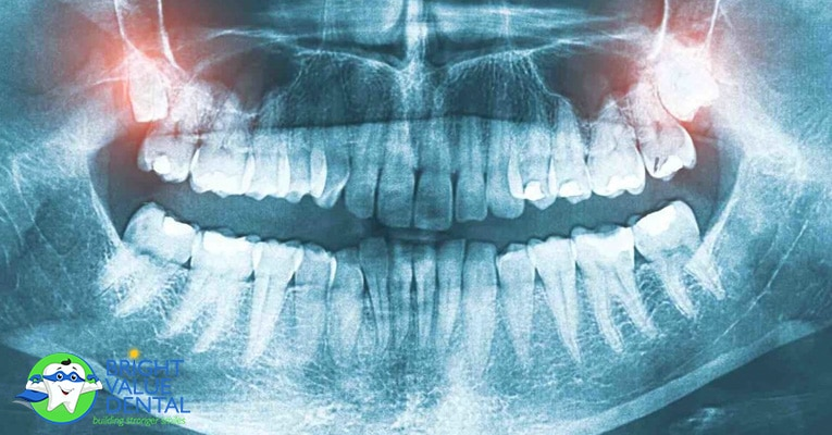 Teeth Extractions and Tooth Removal in Houston
