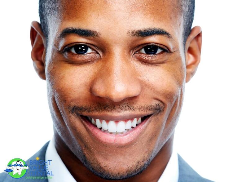 Houston Dentist Teeth Whitening
